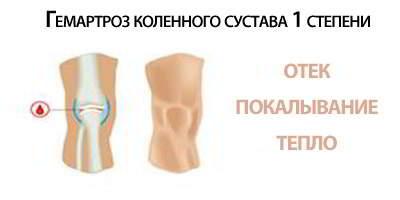 1-2 степень гемартроза коленного сустава