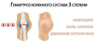 3 степень гемартроза