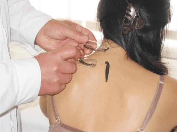 Пиявки при артрозе – альтернатива инъекциям с комплексным действием