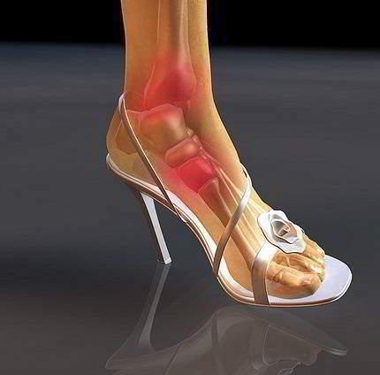Нога на высоком каблуке или Шпильках