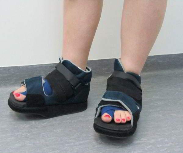 Операция Scarf при искривлении большого пальца на ноге