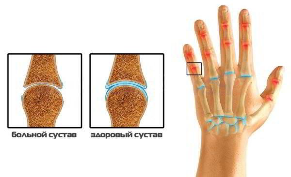 Остеоартрит лучезапястного сустава