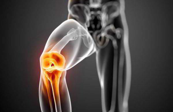 Сильная боль в коленях
