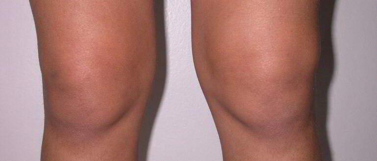 Как сделать так чтобы колени не болели 673