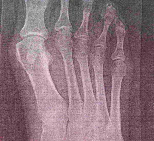 Снимок до операции