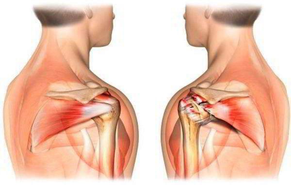 Тендинит сухожилия надкостной мышцы