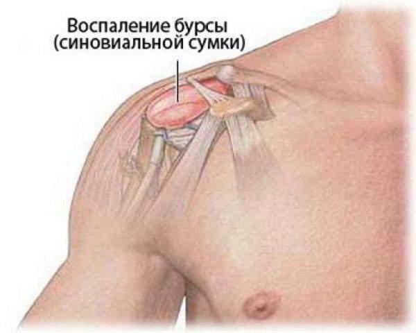 Воспаление бурсы