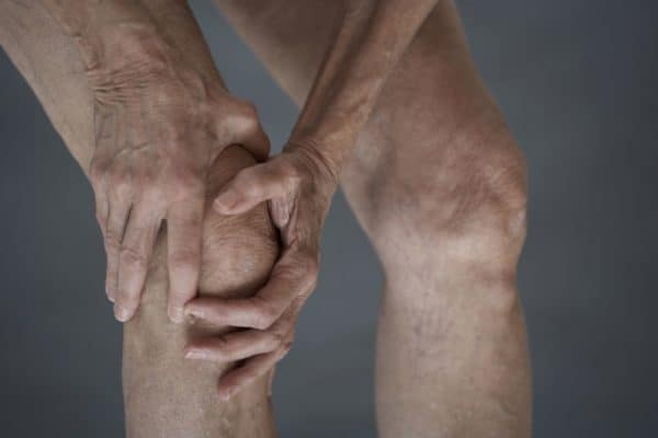 Анкилоз коленного сустава