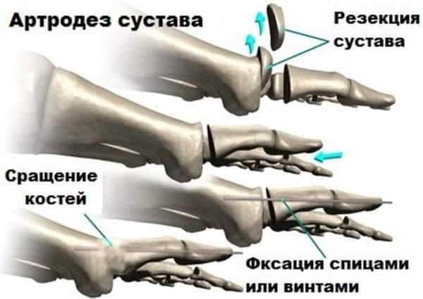 артродез голеностопного сустава