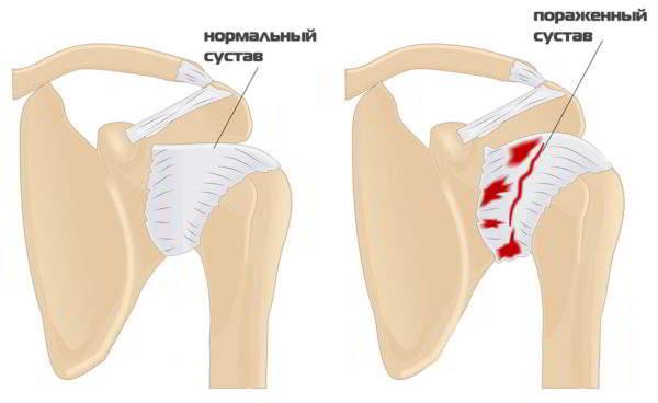Артропатия плечевого сустава