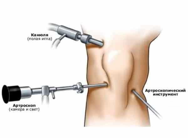 Артроскопия мениска коленного сустава
