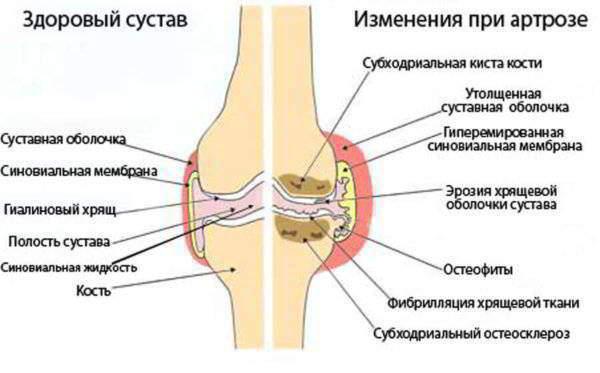 артроз