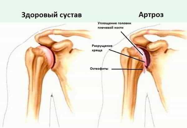 артроз плеча на 1 стадии