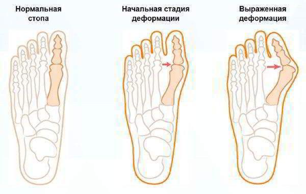 на схеме видно как развивается бурсит пальца