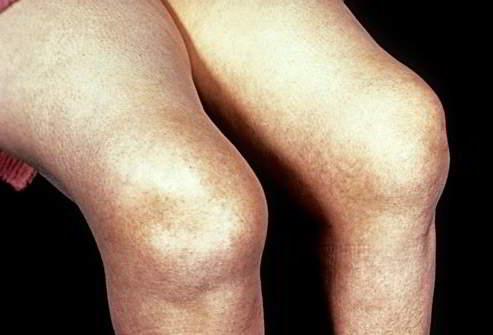 Другие артриты нижней конечности