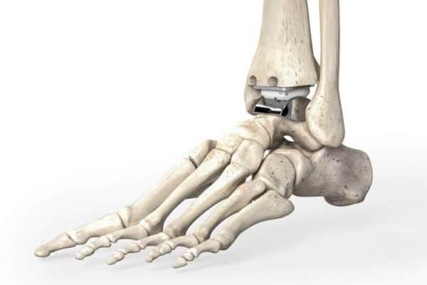 Эндопротезирование голеностопного сустава - стоит ли делать