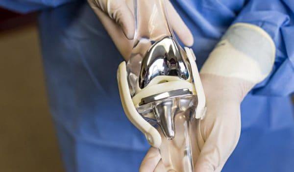 Эндопротезирование коленного сустава не всегда лучший выход