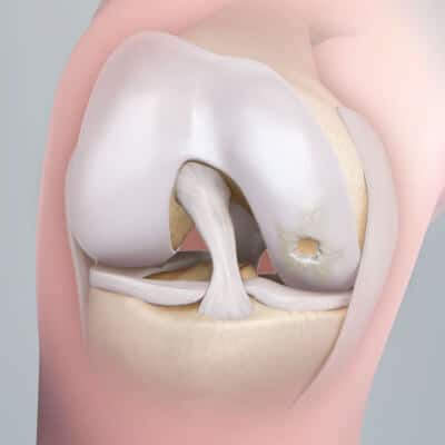 Хрящевая ткань - галектины участвуют в развитии артроза
