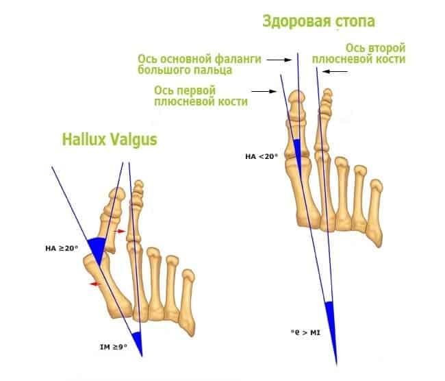 Косточка на большом пальце ноги (Hallus valgus) или вальгусная деформация