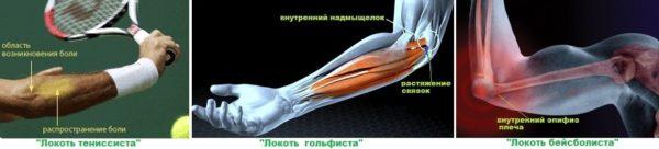 локтевой сустав игрока