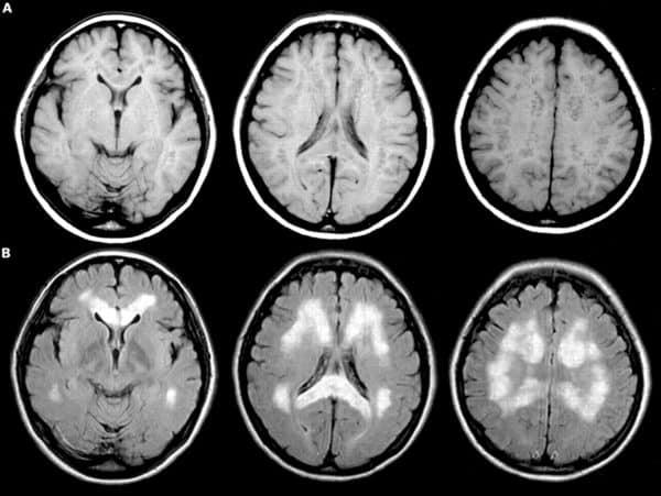 МР-исследование с контрастом