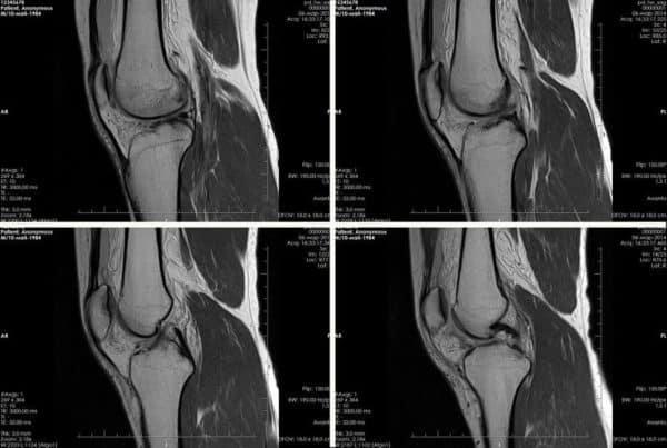 МРТ снимок коленного сустава