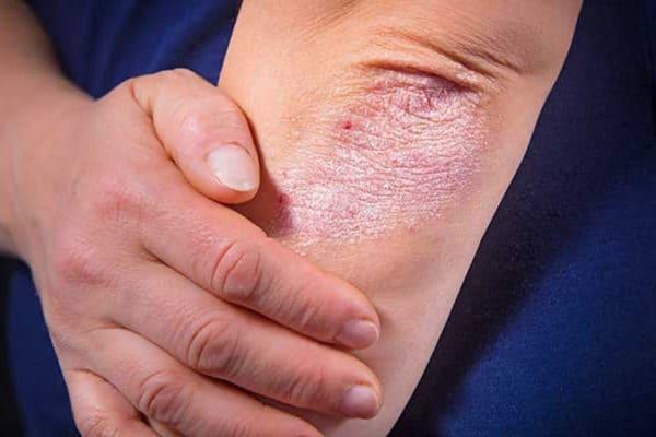 Новые рекомендации при псориатическом артрите