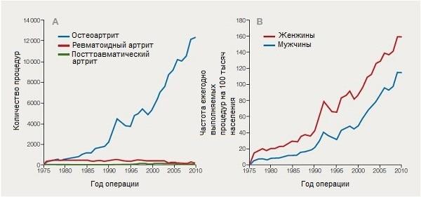 Основные причины и частота артропластики коленного сустава в Швеции