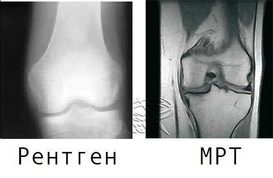 Отличия МРТ от рентгена