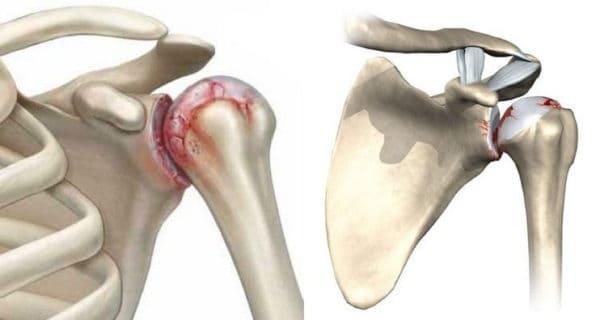 Плечевой остеоартрит