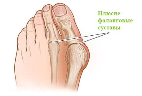 Плюсне-фаланговые суставы стопы