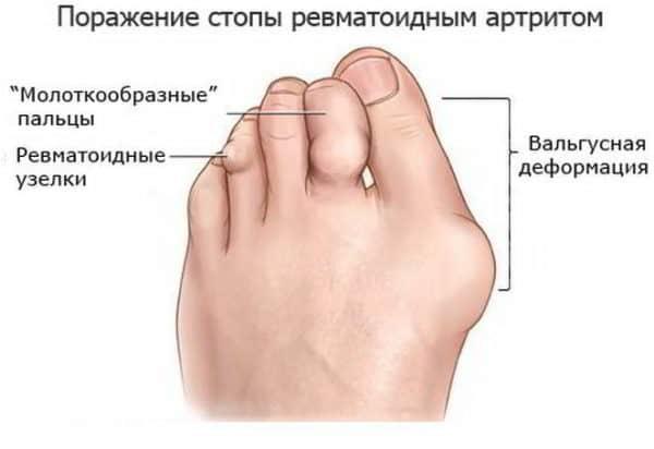 Повреждение суставов стопы