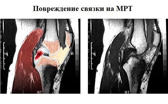 МРТ при повреждении связок