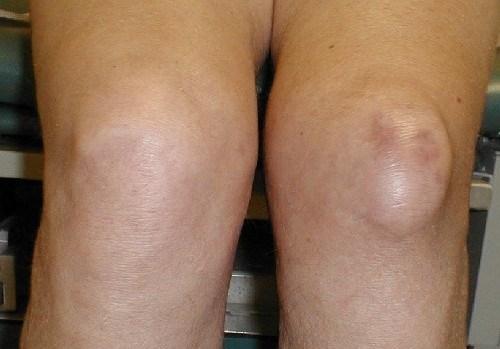 Препателлярный бурсит коленного сустава