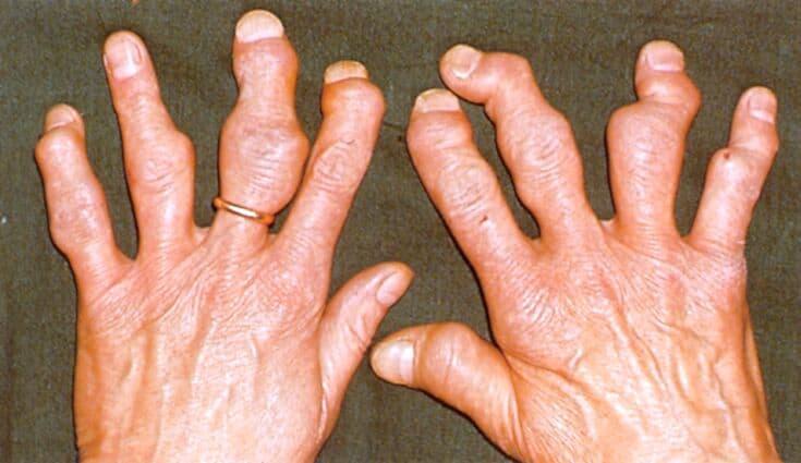 Артрит У Французского Бульдога Симптомы Лечение