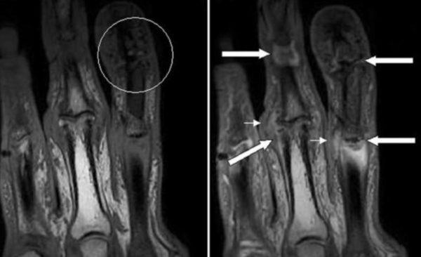 Псориатический артрит мрт суставов