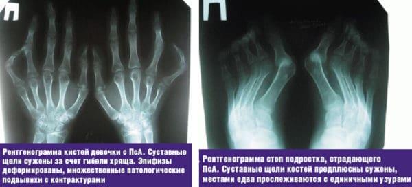Псориатический полиартрит диагностика