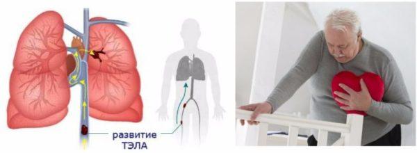 Развитие тромбоэмболий