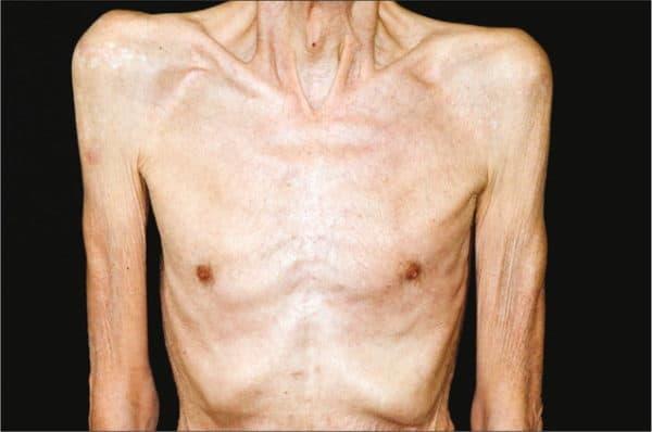 саркопения при ревматоидном артрите