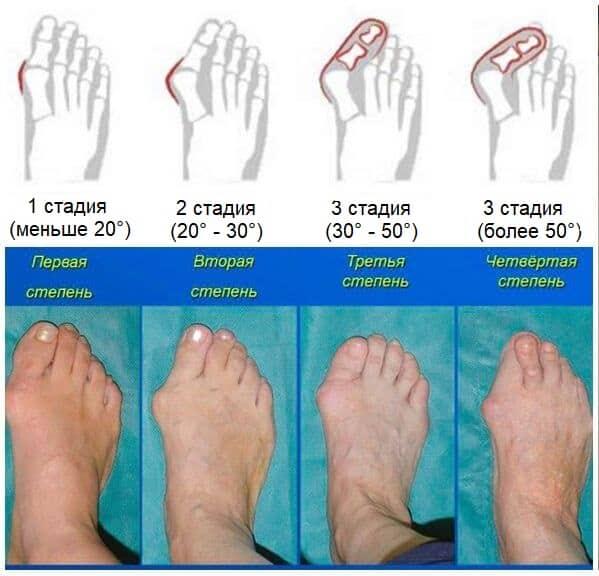 Степени(стадии) вальгусной деформации большого пальца стопы
