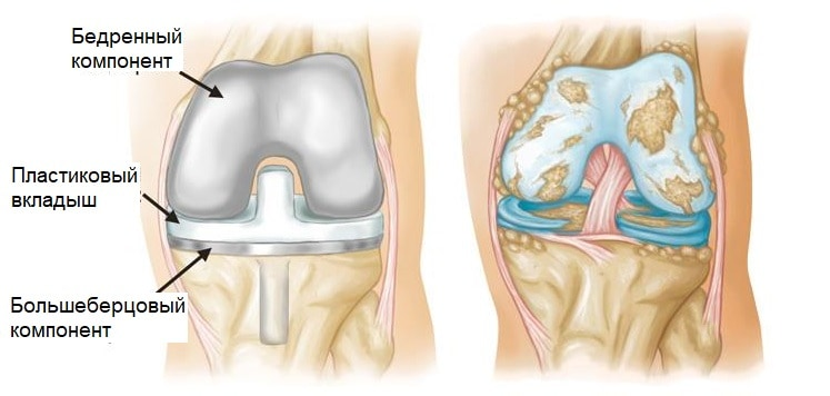 Строение эндопротеза коленного сустава