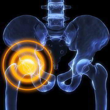 Лечение тазобедренных суставов терапевтическим лазером