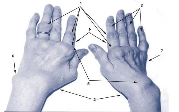 Кисти пораженные ревматоидным артритом