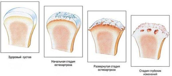 Артроз дугоотросчатых суставов позвоночника или фасеточная артропатия