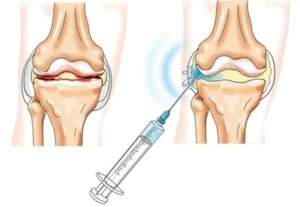 гиалуроновая кислота при остеоартрозе