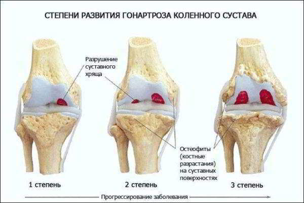 Этапы развития гонартроза колена
