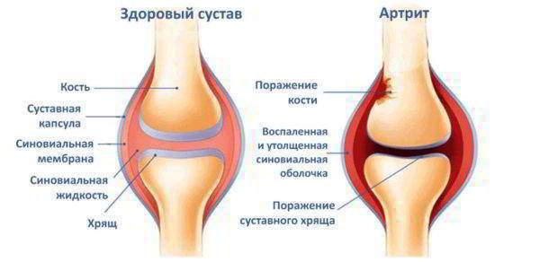 Признаки развития артрита колена