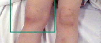 Ревматоидный артрит колена: признаки и лечение