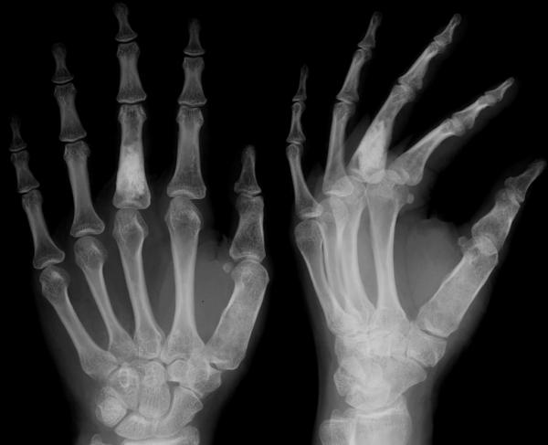 мрт большого пальца руки