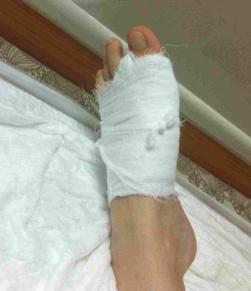Спустя 2 часа после операции